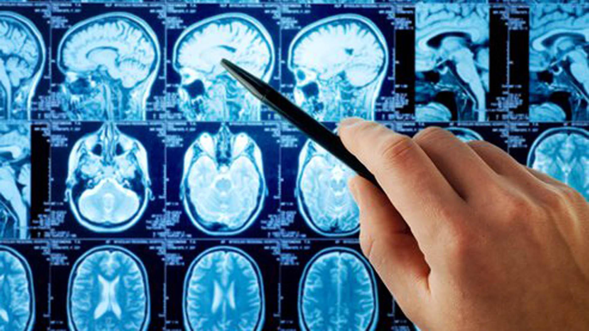 Neuroacciona volverá a acoger las prácticas para la formación de neuropsicólogos de diversas entidades y universidades durante el curso 2017-2018.