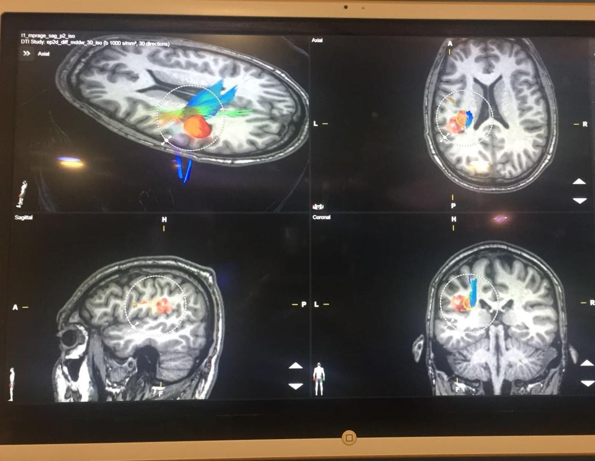 Máster en Neuropsicología de la Universidad de Cádiz